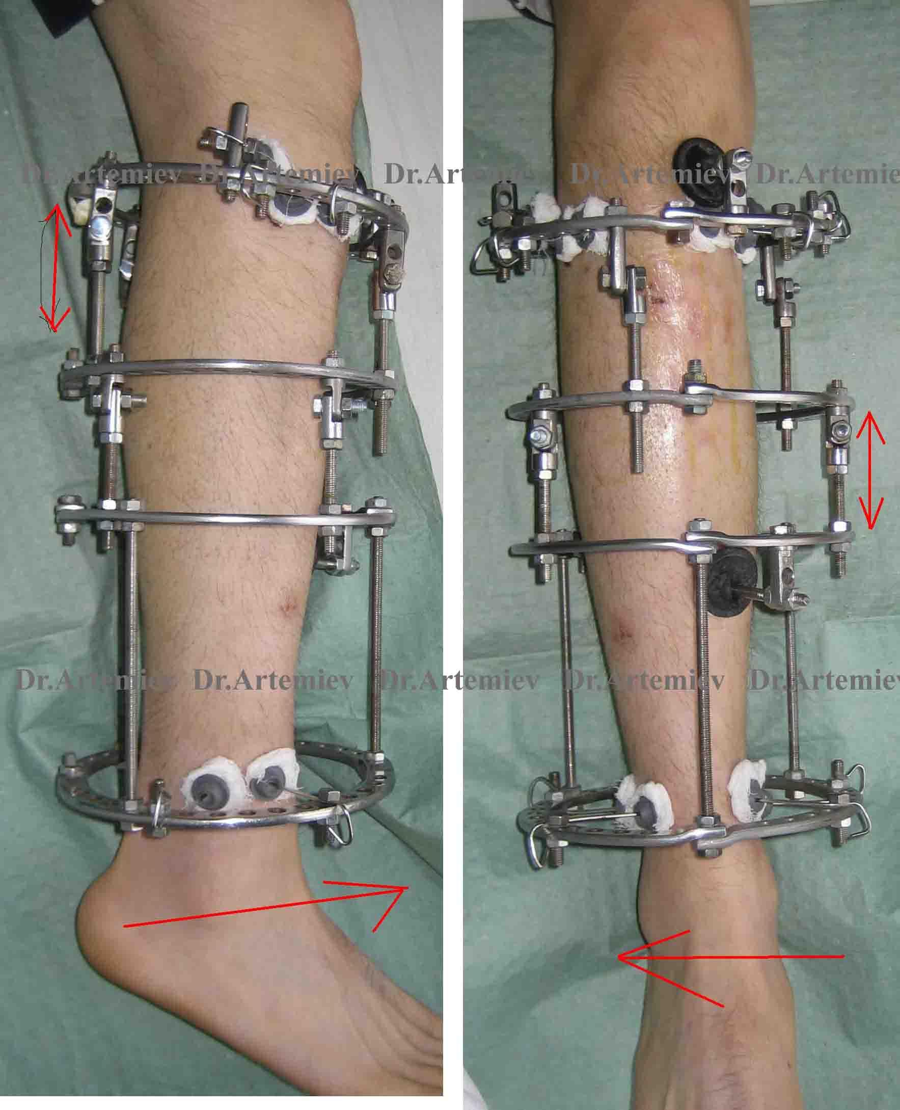 пола прихожей: отек при переломе ноги в аппарате илизарова рейтинг самых